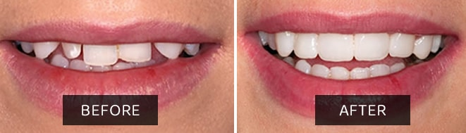 Composite Veneers Before after